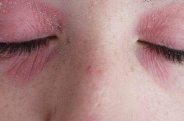 Treat Flaky Dry Skin Around Eyes Skin Dryness