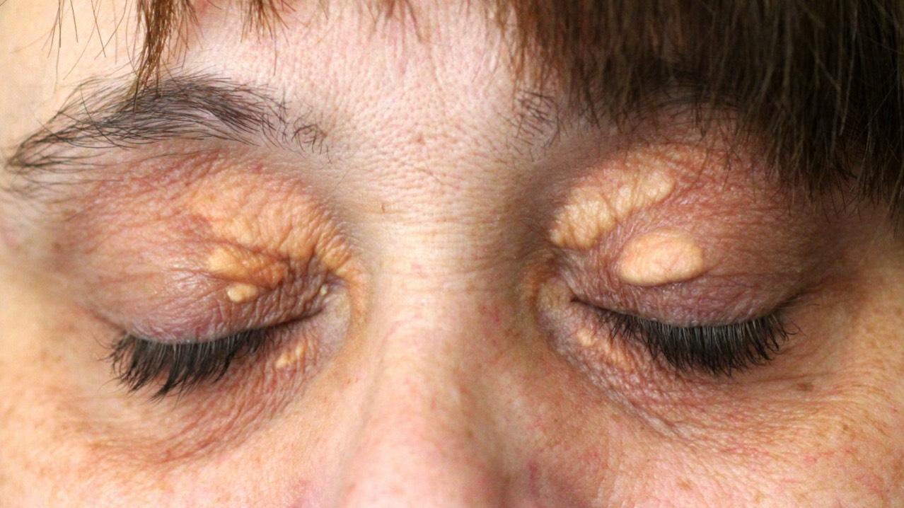 White Fat Bumps Under Eyes